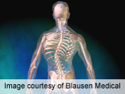 Procedure aids severe, rigid scoliosis in low-weight adults