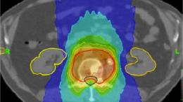 Project to improve radiotherapy planning