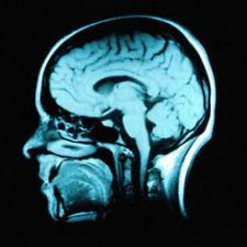 Protein-based coating could help rehabilitate long-term brain function