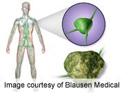 R-CHOP benefits older mantle-cell lymphoma patients