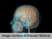 Repeat CT scan urged for head trauma patients on warfarin