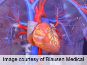 Resting heart rate predicts overall, cardiovascular mortality