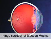 Retinal hemorrhage pattern can predict inflicted brain injury
