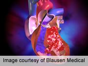 Risk factors ID'd for SCA in heart defect repair survivors