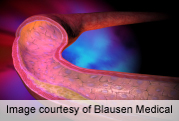Risk of rupture increases with size of cerebral aneurysm