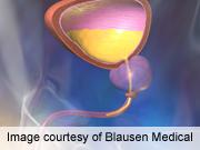 RNA assays up sensitivity of urothelial carcinoma detection