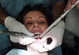 Root cause of dental phobia