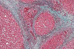 Scarring cells revert to inactive state as liver heals