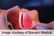 Sleep apnea severity linked to glycated hemoglobin levels