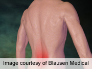 Spanish registry IDs predictors of low back pain improvement