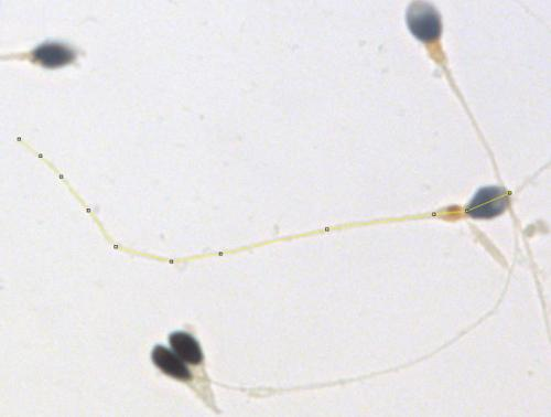 Sperm length variation is not a good sign for fertility