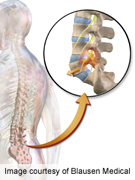 Spondylolisthesis linked to spinous process fractures