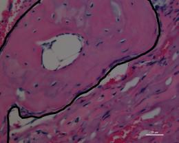Stem-cell-growing surface enables bone repair