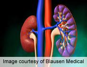 Steroid-free regimen post-pediatric renal transplant safe