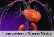 Sulfonylureas up cardio events versus metformin