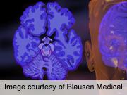 Supplement mixture improves memory in mild alzheimer's
