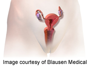 'Surgeon-tailored' mesh repair resolves urinary incontinence