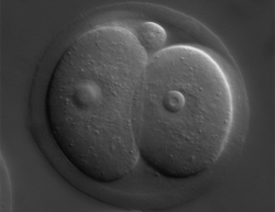 The influence of the mother: maternal epigenetic inheritance