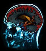 Transneuronal spread model fits neurodegenerative disease