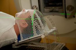 Vitamin C may enhance radiation therapy for aggressive brain tumors