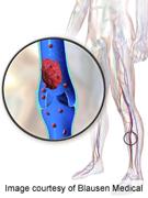 Von willebrand factor linked to bleeding complications