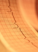 Women don't fare as well as men with implanted defibrillators: study