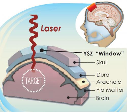 Creating a 'window' to the brain