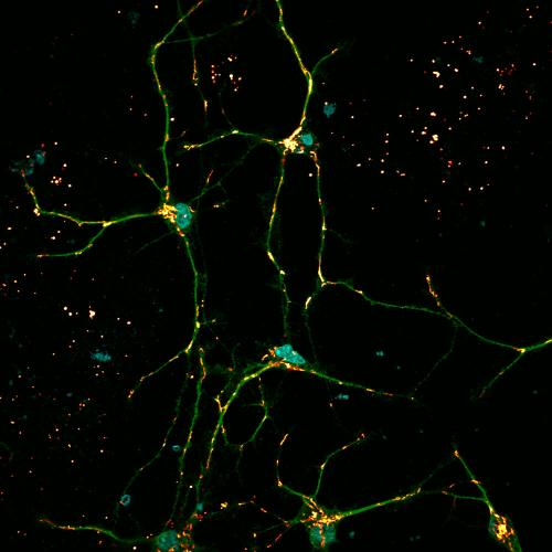 Defective cellular waste removal explains why Gaucher patients often develop Parkinson's disease