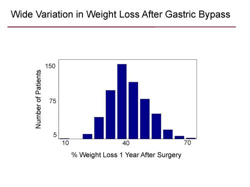 Genetic factor predicts success of weight-loss surgery