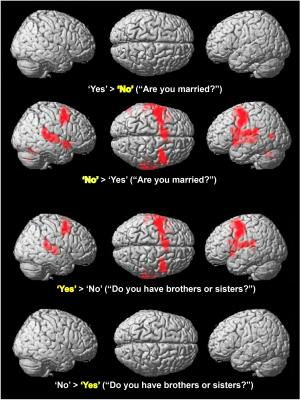Neuroscientists get yes-no answers via brain activity
