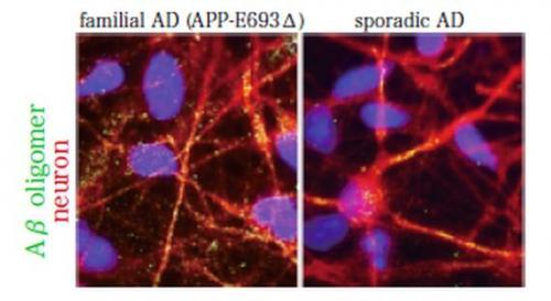 Modeling Alzheimer's disease using iPSCs