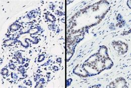 Protein that represses critical checkpoint protein for cellular growth helps drive tumor development