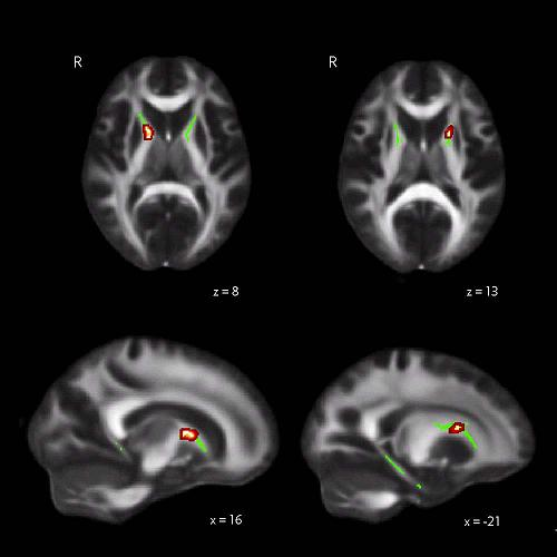 Study finds neural differences in good navigators