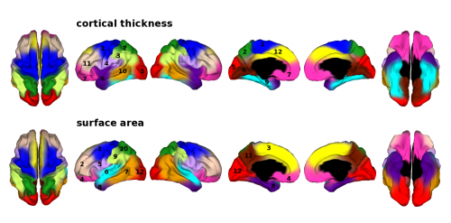 Study reveals information about the genetic architecture of brain's grey matter