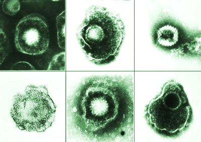 Thwarting herpes, scientists open antiviral drug path