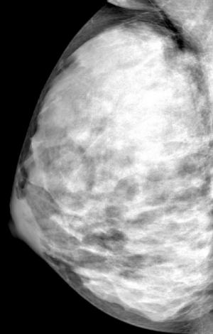 Breast cancer risk related to changes in breast density as women age