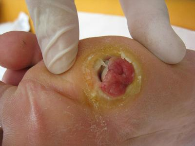 Researchers explain why some wound infections become chronic
