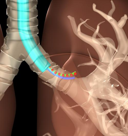 Researchers devise X-ray approach to track surgical devices, minimize radiation exposure