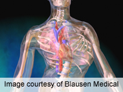 Risk factors ID'd for scoliosis surgery complications