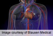 Predictors of mortality, CVD risk in cushing's disease ID'd