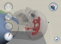 Virtual Learning iPad app to help train future neurosurgeons