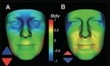 Researchers link facial structure to kidney disease