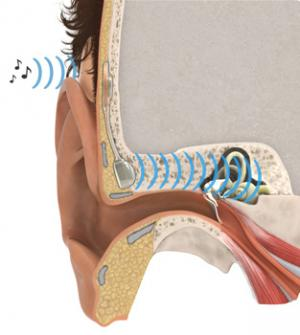 New implant replaces impaired middle ear