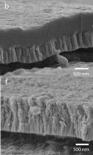 Researchers coat spinal polymer implants with bioactive film to improve bonding with bone
