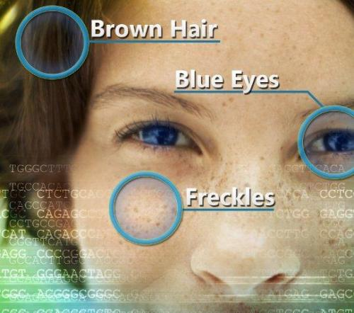 Researchers identify genomic variant associated with sun sensitivity, freckles