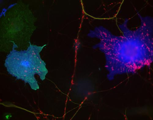 Protein family linked to autism suppresses the development of inhibitory synapses