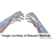 AANS: brain machine interface can control prosthetic arm