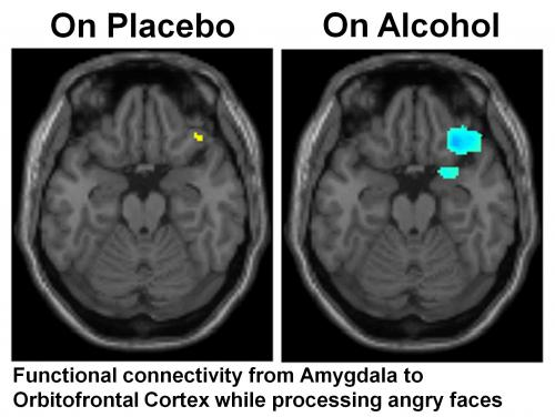 Alcohol breaks brain connections needed to process social cues