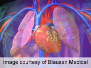 Ambrisentan not effective in idiopathic pulmonary fibrosis