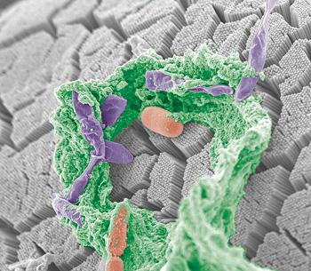 An altered gut microbiota can predict diabetes